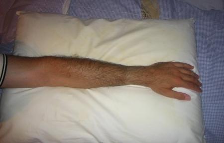 pillowsplint1.jpg