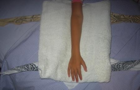 towelsplint1.jpg